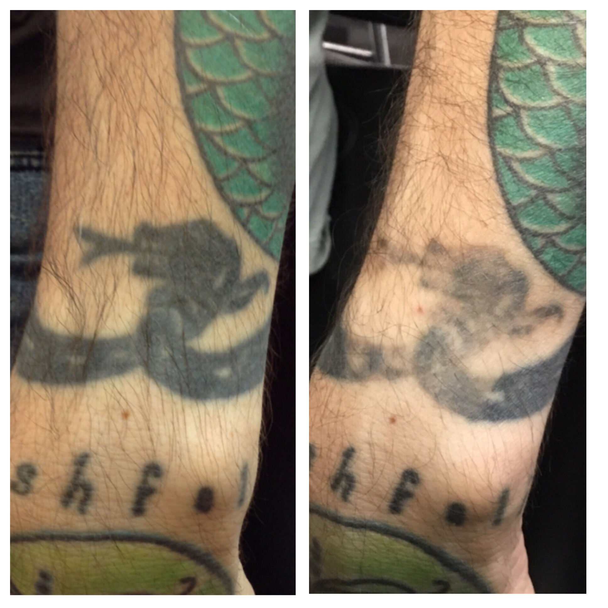 Tattoo Removal Before And After Photos At Disappearing Inc