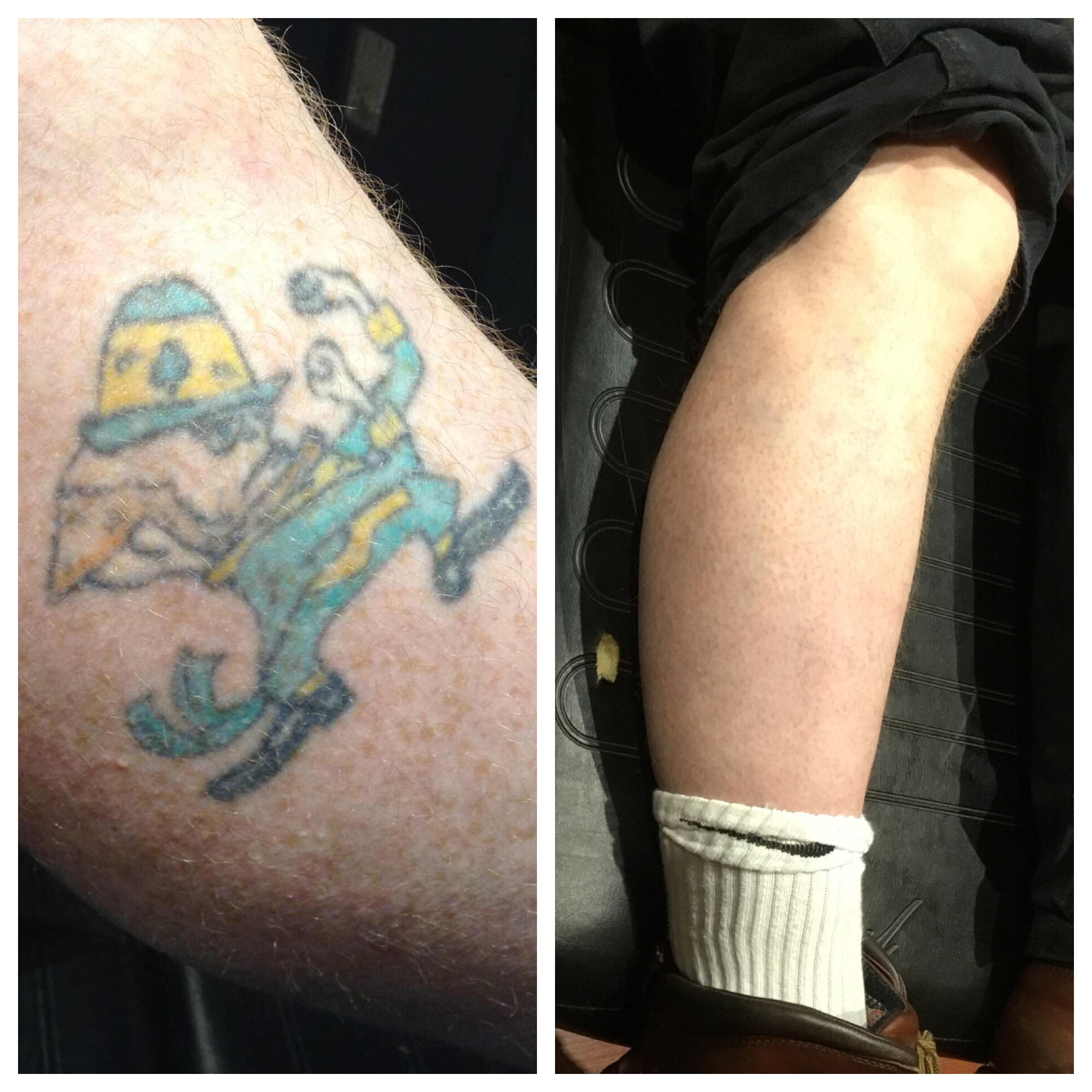 Fighting Irish Leg